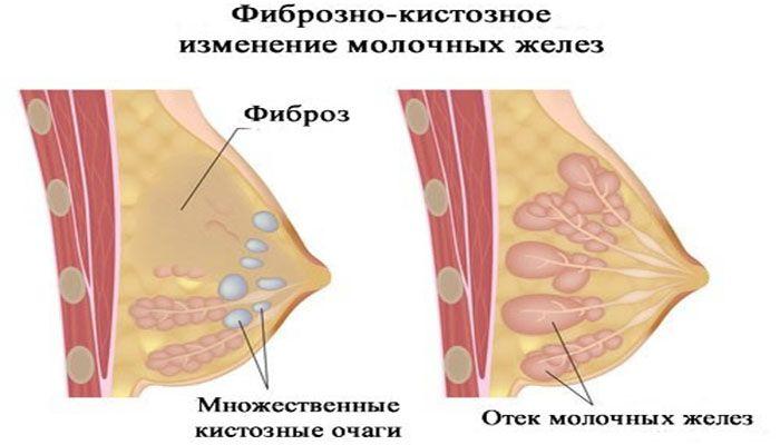 Фиброзно-кистозная мастопатия молочных желез