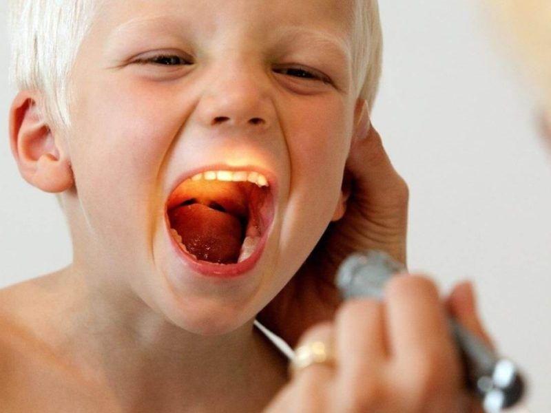 Аденоиды у ребенка: лечить или удалять