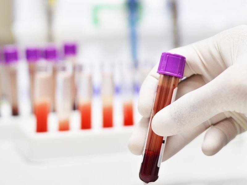 Повышенный ацетон в крови