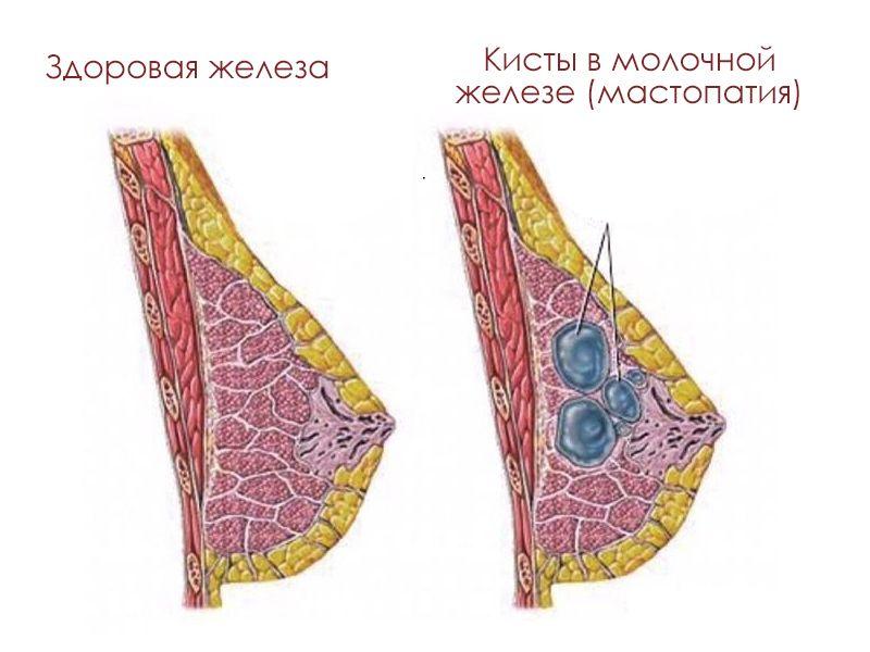 Мастопатия, кисты