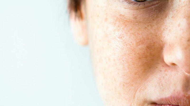 Сильная пигментация на лице: причины и методы избавления