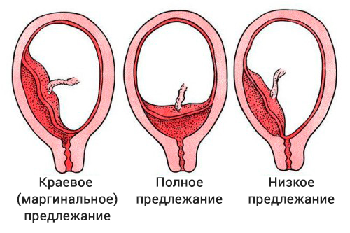 Предледание плаценты