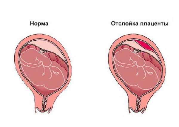 Отслоение плаценты